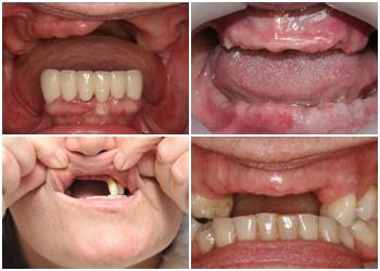 Cấy ghép răng giả implant