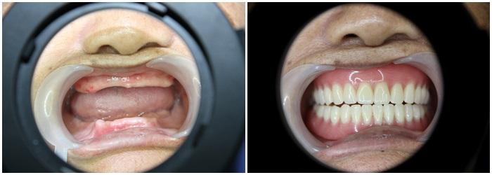 Làm răng giả toàn hàm - Phục hình mất răng bền, đẹp, chi phí thấp 2