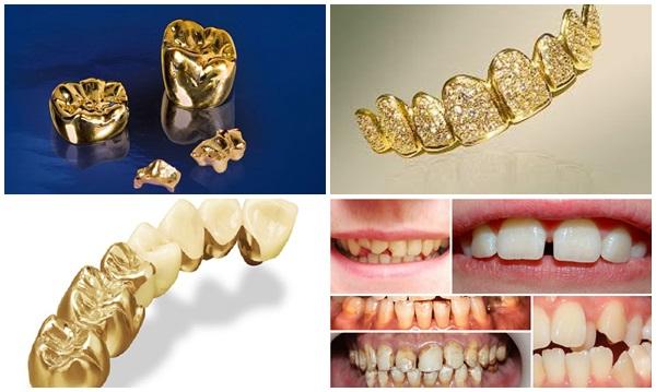 răng giả vàng - 1