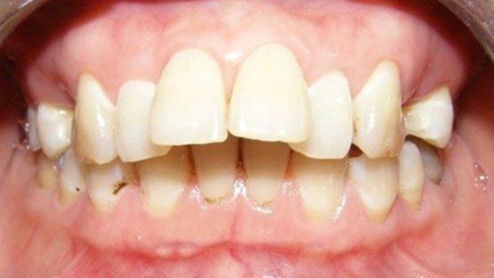 Cách chữa răng hô hiệu quả triệt để mà an toàn, thẩm mỹ cao