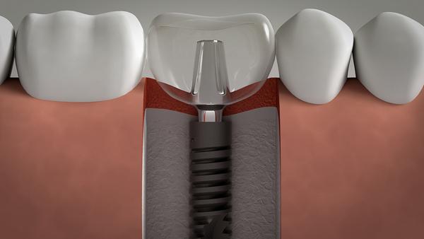 Trồng răng giả vĩnh viễn -2