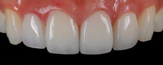 Làm răng nhỏ lại bằng cách bọc sứ có hiệu quả không?