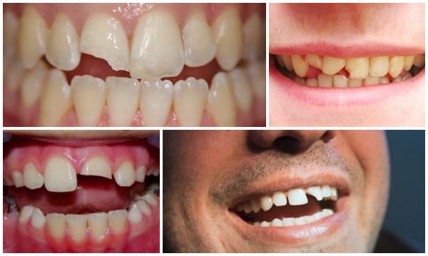 Làm răng mẻ 1
