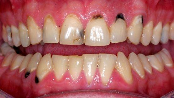 Sâu chân răng – Nguyên nhân là do đâu?