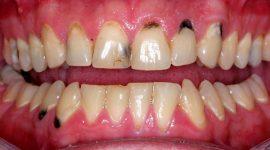 Bọc răng sứ cho răng sâu – Bên đẹp như thật, ngừa mất răng