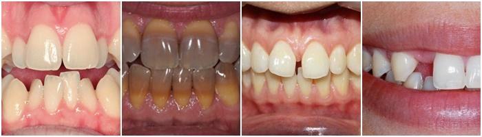 tư vấn răng sứ 5