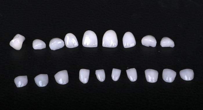 trồng răng implant 9