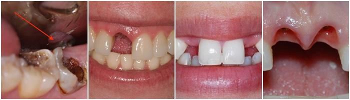Trồng răng sứ – Giải pháp tối ưu cho trường hợp mất 1 răng hoặc nhiều răng 1