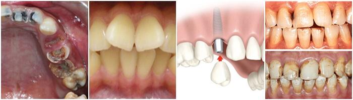 Bọc răng sứ titan – Phục hình răng bền chắc, tiết kiệm 2