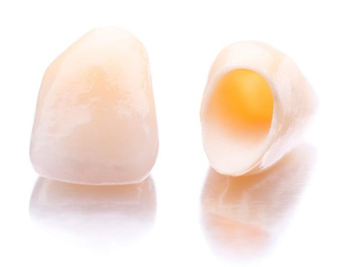răng sứ cercon - 1