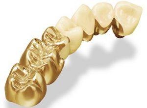 răng sứ quý kim - 1