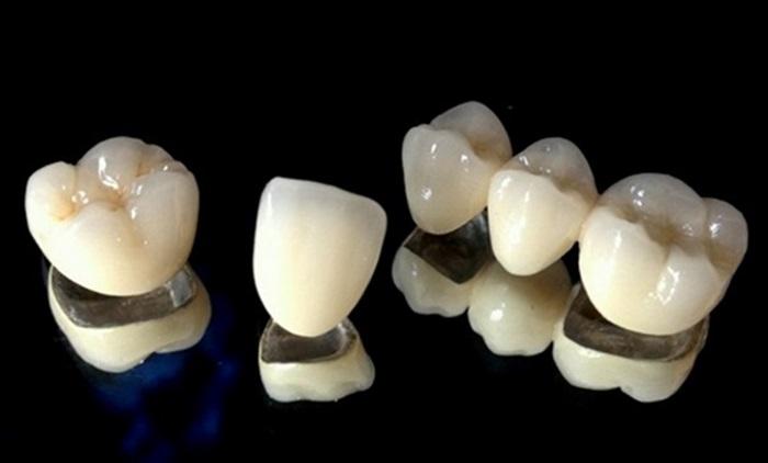 Răng Sứ Titan - Mang lại tính thẩm mỹ cao và hiệu quả ăn nhai tốt 1