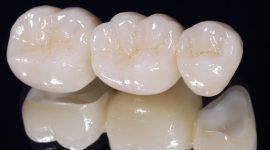 Bọc răng sứ thẩm mỹ – GIẢI PHÁP phục hình răng HOÀN HẢO nhất