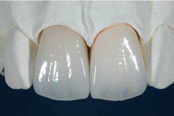 Mão răng sứ 1