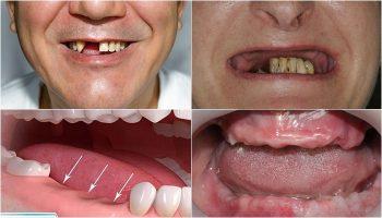 Răng giả tháo lắp - Giải pháp phục hình nhanh và tiết kiệm chi phí