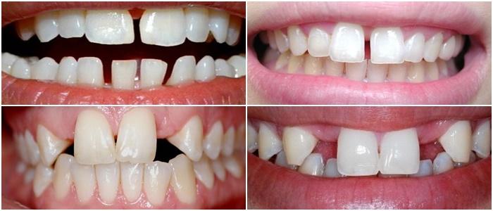 Niềng răng thưa - Khắc phục hoàn toàn thưa hở, duy trì trọn đời 1