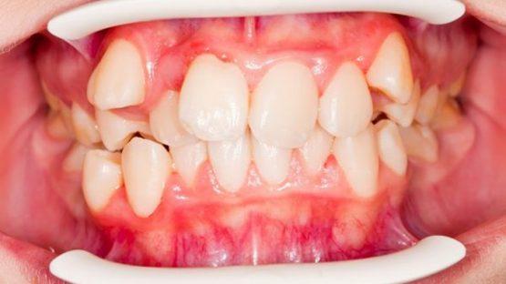Răng xấu làm sao khắc phục hiệu quả và an toàn nhất?