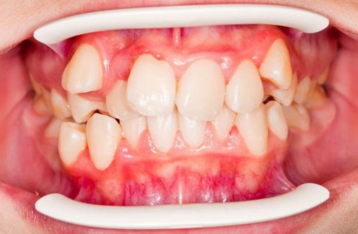 Răng xấu làm sao khắc phục hiệu quả và an toàn nhất? 1