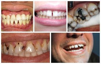 Răng sứ kim loại 8