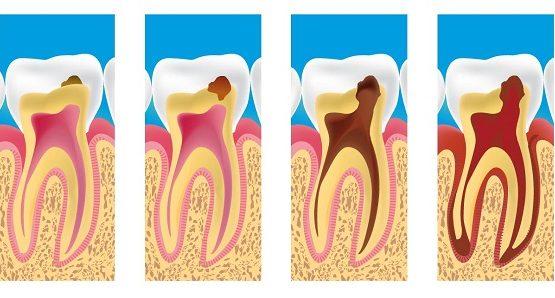 Rút tủy răng ở đâu tốt  và an toàn nhất hiện nay?