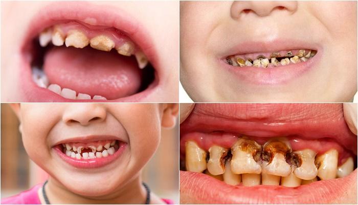 Viêm nha chu trẻ em - Nguyên nhân và cách điều trị hiệu quả 3