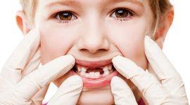 Sâu răng sữa ở trẻ khi nào nên nhổ bỏ?