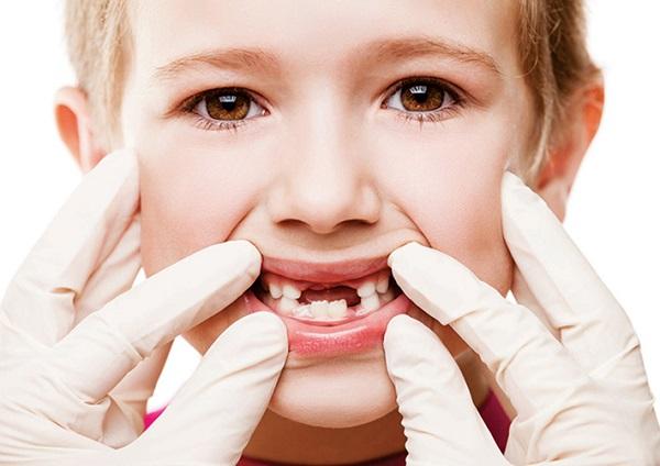 Sâu răng sữa trẻ em – Nguyên nhân và cách điều trị