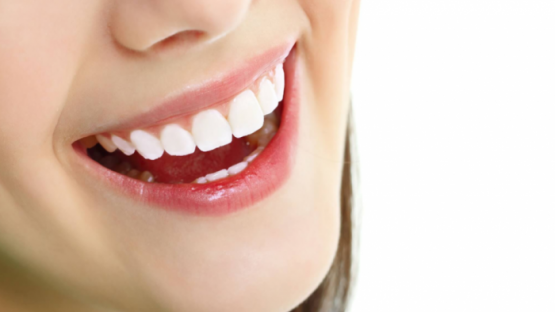 Có nên bọc răng sứ hay không? Bọc răng sứ có tốt như lời đồn?