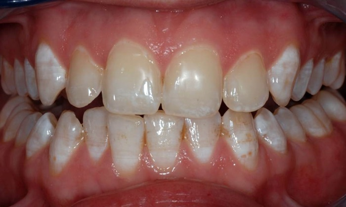 Tẩy răng không đều màu - Giải pháp tối ưu cho hàm răng trắng đẹp 1