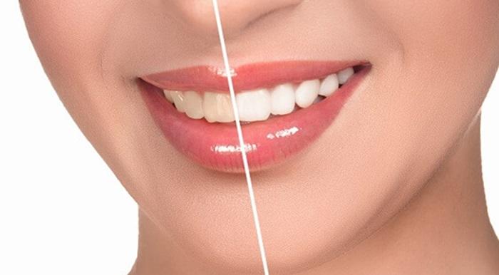 Tẩy răng nhanh chóng và hiệu quả cao bằng công nghệ Bleach Bright 1