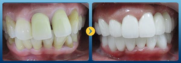 tẩy răng laser 6