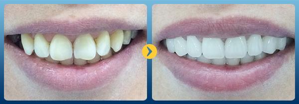 tẩy răng laser 7
