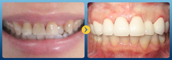 tẩy răng laser 8