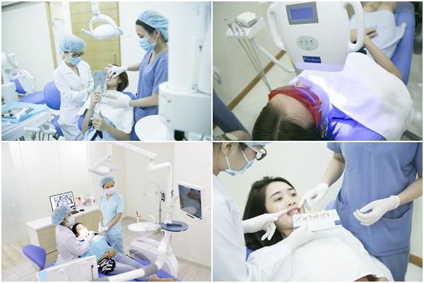 tẩy răng an toàn 2