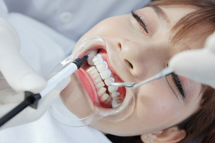 """Tẩy trắng răng ở Hà Nội - """"thay áo mới"""" cho hàm răng xỉn màu 7"""