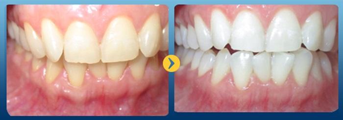 Răng nhiễm Fluor - Cách nào điều trị hiệu quả nhất? - Nha Khoa Bally 1