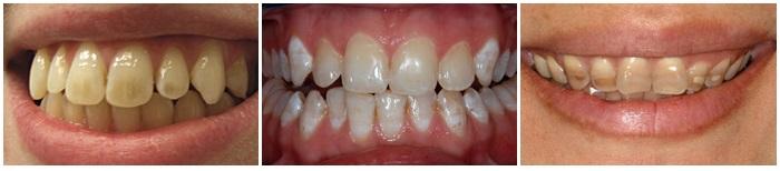 Công nghệ tẩy trắng răng Bleach Bright có ưu điểm gì nổi bật? 2