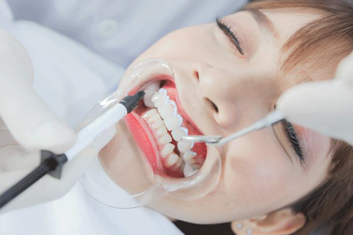 Tẩy trắng răng có hại không? Làm sao để tẩy trắng răng an toàn? 5