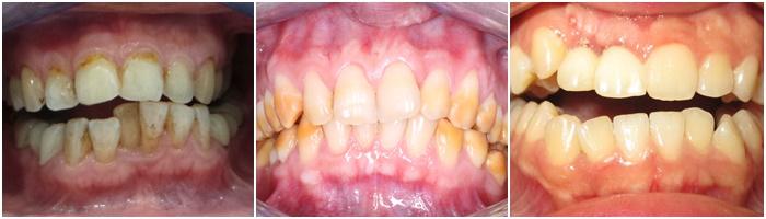 Tẩy trắng răng hiệu quả, an toàn, bền lâu tại Nha Khoa KIM 1