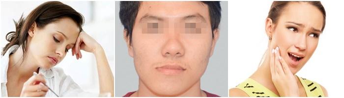 Chữa viêm khớp thái dương hàm an toàn tại Nha Khoa KIM 2