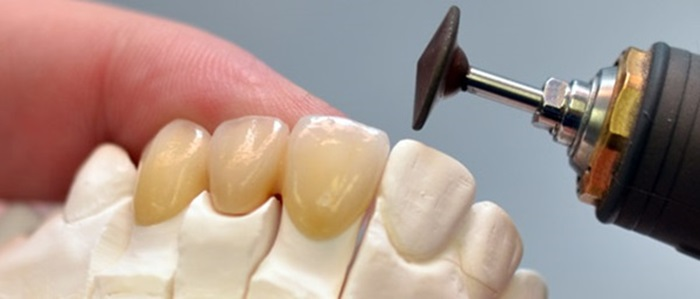 Thay răng giả mới khi nào? Những dấu hiệu nhận biết 2