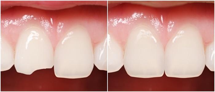 Hàn trám răng - Giải pháp phục hình răng bị sứt, mẻ, vỡ nhanh chóng 2