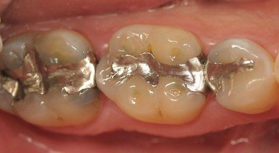 Đâu là địa chỉ trám răng nào tốt và đảm bảo chất lượng?