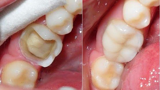 Chữa sâu răng hàm trên ở đâu an toàn và hiệu quả nhất hiện nay?