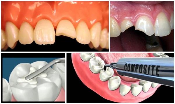 trám răng 3