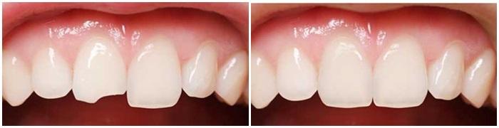 Gãy răng cửa phải làm thế nào để khắc phục hiệu quả, thẩm mỹ? 2