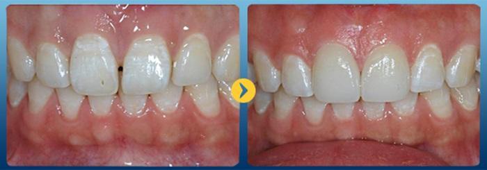 Trám răng thưa - Làm khít khoảng trống cho hàm răng đều 2