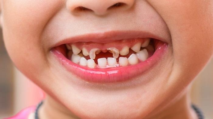 Trám răng trẻ em bằng loại nào thì tốt nhất? 1