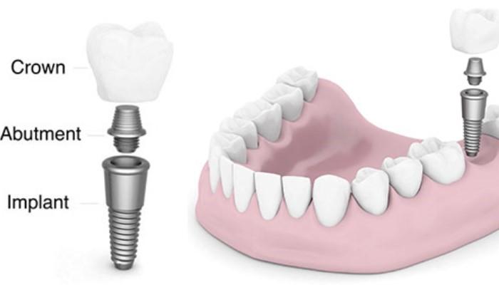 Trồng răng sứ – Giải pháp tối ưu cho trường hợp mất 1 răng hoặc nhiều răng 3