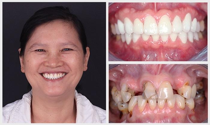 răng giả cố định 3
